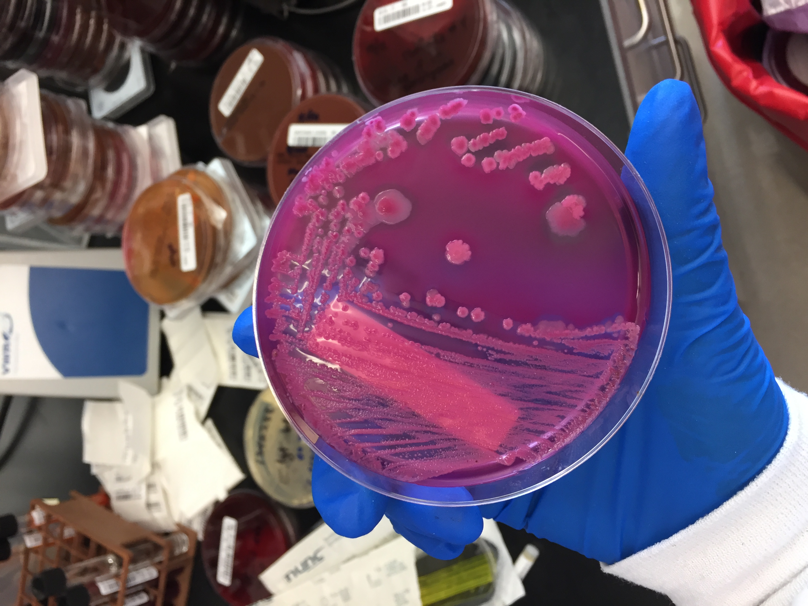 bacteria growing on Mac Agar